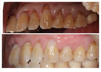 【歯肉退縮の治療】